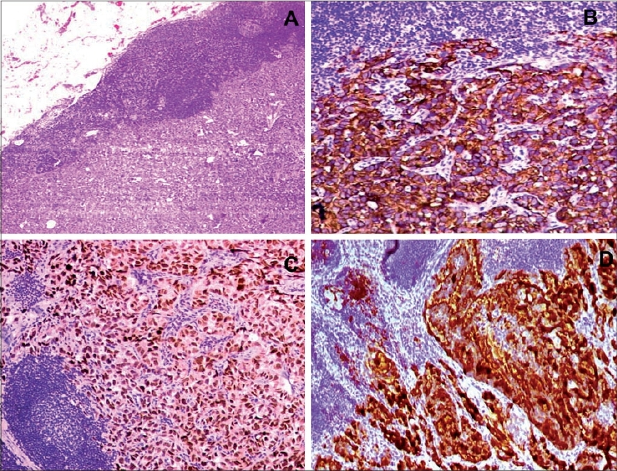Figure 9: Metastasis of lung adenocarcinoma to supraclavicular lymph node: H and E (A); immunoreactivity seen includes CK7 strong cytoplasmic (B), TTF1 strong nuclear (C), and SPB diffuse granular cytoplasmic (D)