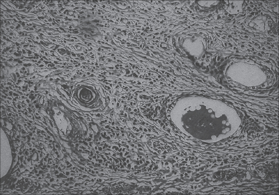 Figure 2: Photomicrograph showing tumor cells along with a keratin pearl (H&E, x400)