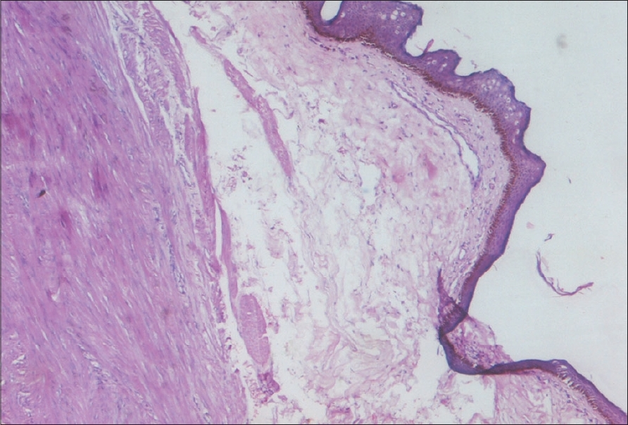 Figure 2: Photomicrograph showing well circumscribed tumor mass well delineated from skin (H&E, x40)