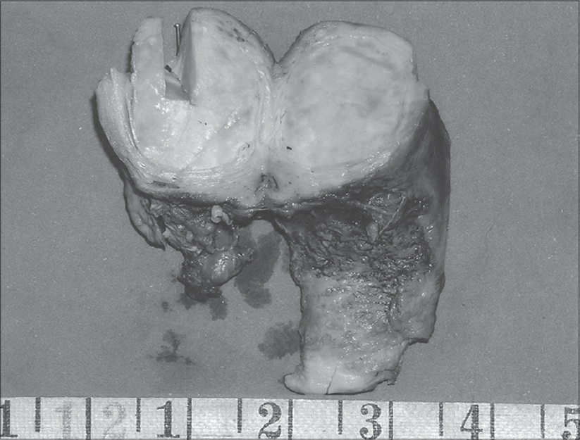 Figure 1: Gross specimen showing cut section of uterus with a wellcircumscribed, intramural and yellowish-white tumor