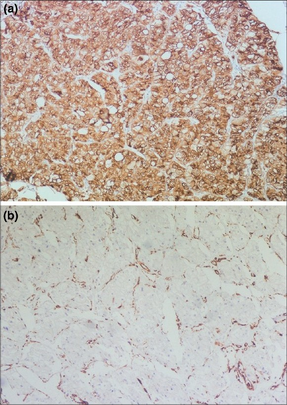 Figure 3: (a) Section from conventional RCC shows positi ve vimentin; (b) negative in Chromophobe RCC