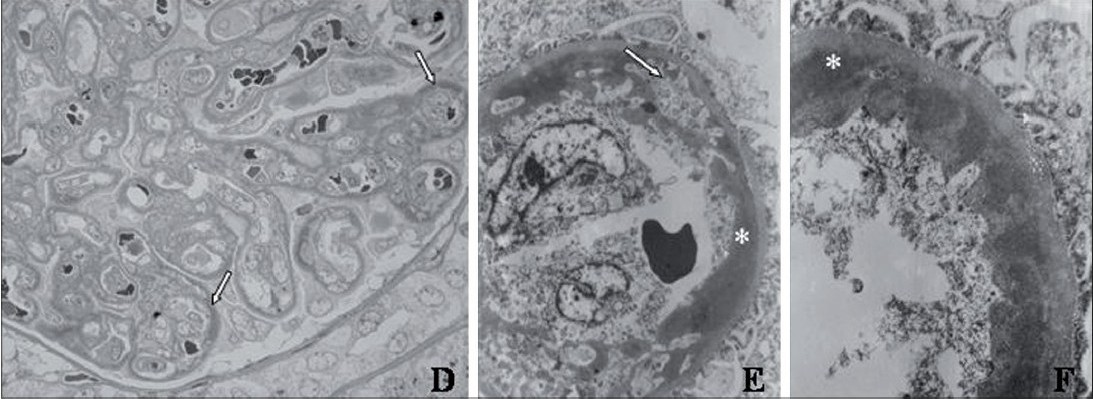 Figure 2D-F:  (D) Semi-thin secti on revealing presence of widespread subendothelial deposits (arrow) (toluidine blue stain, x1000). (E, F) Ultrastructure of glomerular capillary loop with diffuse large subendothelial electron dense deposits (asterisk) and mesangial cell interpositi on (arrow). Patchy effacement of foot process of visceral epithelial cells is also noted (uranyl acetate with lead citrate, x7750 and x16,650)