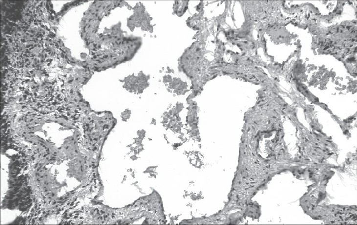 Figure 3: Photomicrograph showing dilated vascular spaces with a focus of hemosiderin laden macrophages (H&E, x200)