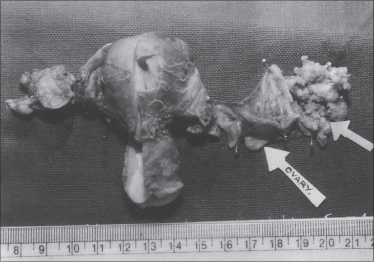Figure 1: Photograph of gross specimen showing the dilated and thinned - out ampullary portion of fallopian tube containing a large friable mass with papillary processes