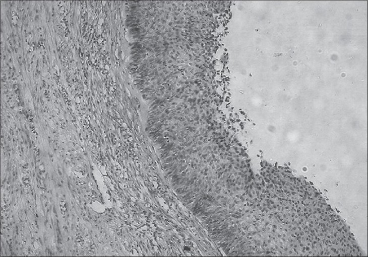 Figure 1: Photomicrograph showing extensive replacement of endometrial lining by squamous metaplastic epithelium with features of dysplasia (H and E, �40)