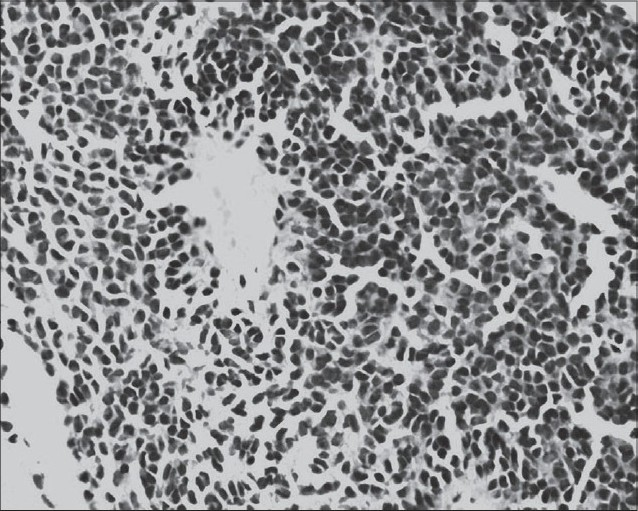 Figure 2: Photomicrograph showing small round tumor cells with oval, hyperchromatic nuclei and scanty cytoplasm. Perivascular arrangement of tumor cells is also seen (H&E, x 400)