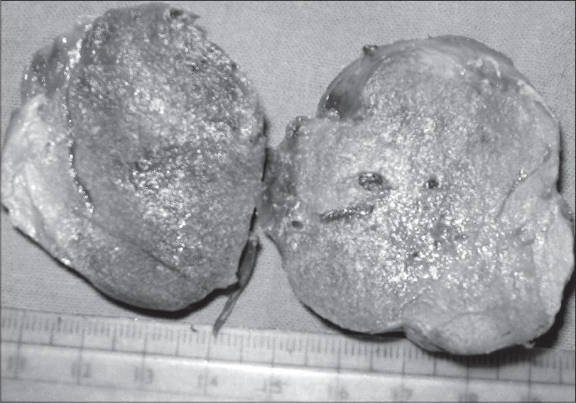 Figure 1 :Cut surface of thyroid showing gray white to yellow encapsulated tumor