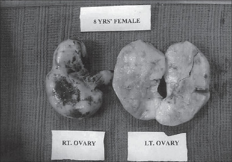 Figure 1 :Malignant Lymphoma of Ovary massively replacing the organ