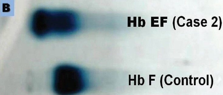 Figure 1B :The electrophoretograms of Case 2 (B)