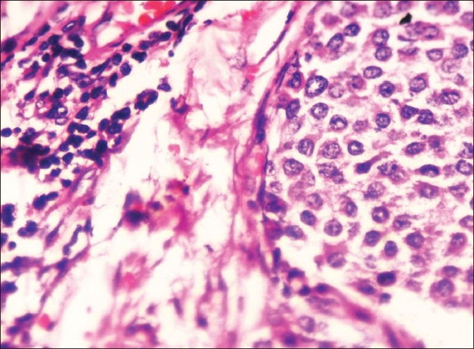 Figure 3 :Neuroendocrine carcinoma � High power view showing cells which are relatively uniform and small in size and shape with characteristic salt and pepper chromati n and moderate amount of granular eosinophilic cytoplasm. (H&E, x400)