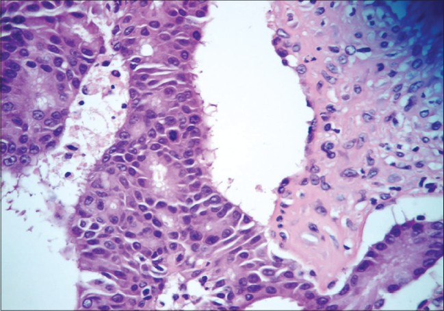 Figure 2: � magnification showing carcinomatous and sarcomatous areas lined by neoplastic epithelial and mesenchymal cells