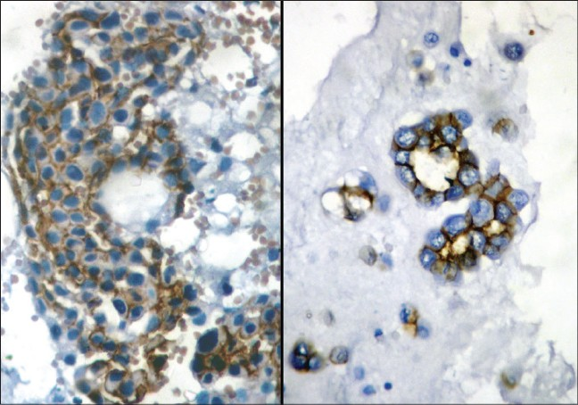 Figure 2: E-cadherin staining around individual cell membranes producing a fishnet-like pattern in adenocarcinoma on the right and reactive mesothelium on the left (IHC-streptavidin-biotin, �0)