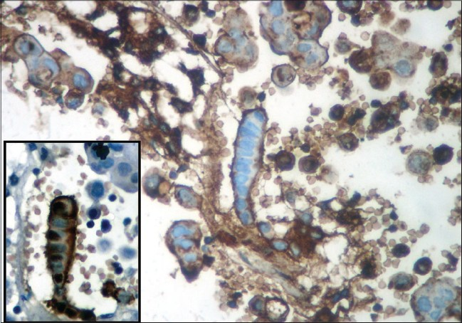 Figure 3: Reactive mesothelial frond with strong staining of the membrane for carcinoembryonic antigen with non-specific staining of the inflammatory cells in the background. Inset shows the same cluster with vivid calreti nin positi vity. Also note the positi vity in the adjoining adenocarcinoma clusters (IHC-streptavidin-bioti n, �0)