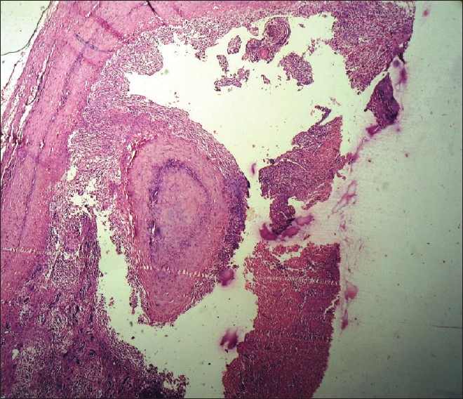 Figure 3: Photomicrograph showing neoplasm with cystic areas (H and E, �0)