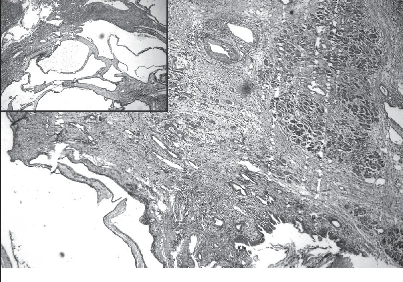 Figure 2: Photomicrograph showing cysti c structures lined by a cuboidal epithelium (inset) and adjacent pancreati c ti ssue with fi brosis and chronic infl ammati on. (H and E, �0)