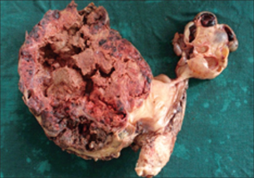 Figure 2: Panhysterectomy specimen. Cut secti on of left ovarian mass shows a solid mass with extensive areas of necrosis and hemorrhages and that of right ovarian mass shows hemorrhagic cysts of varying sizes