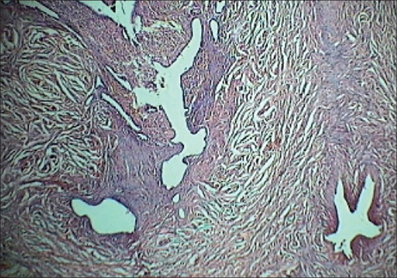 Figure 2: Photomicrograph showing dilated glands trapped in muscle layer (H and E, �40)