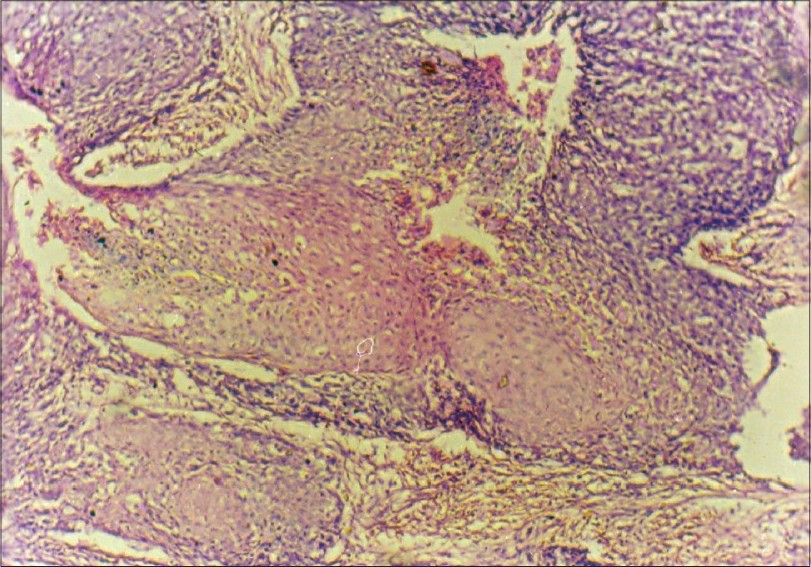 Figure 3 :Areas of squamous cell carcinoma (H and E, x100)