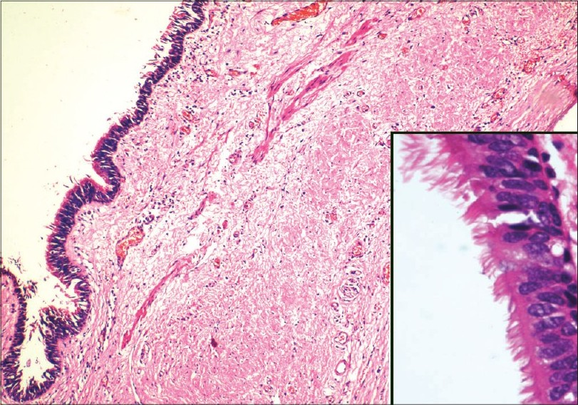 Figure 1: Photomicrograph showing cyst wall lined by ciliated epithelium, smooth muscle wall and outer fi brous layer; (H & E, x100). Inset showing higher magnifi cati on of cilia