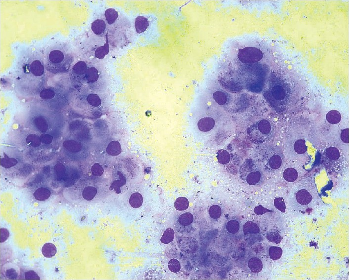 Figure 1 :FNA smears show uniform cells with abundant cytoplasm, eccentric nuclei and inconspicuous nucleoli lying in groups and sheets. Apocrine metaplasia is also seen in some areas. (Leishman-Giemsa, x
