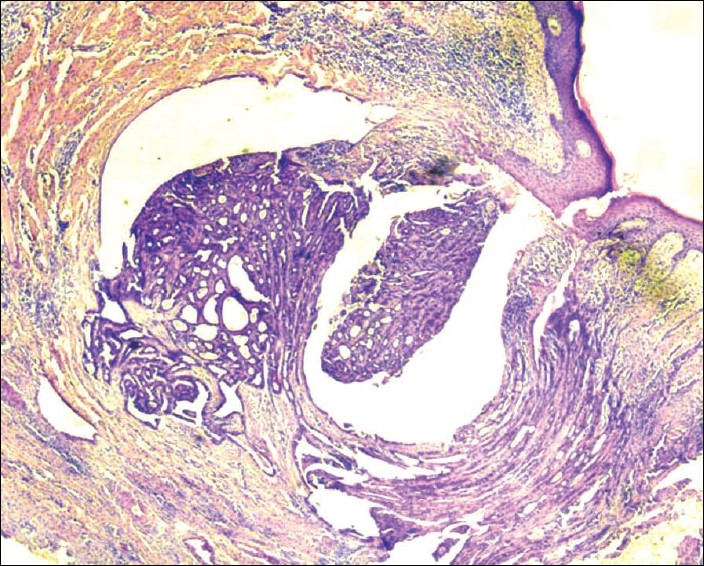 Figure 2 :Biopsy shows lactiferous duct with papillomatous proliferati on. (H and E, x 40)