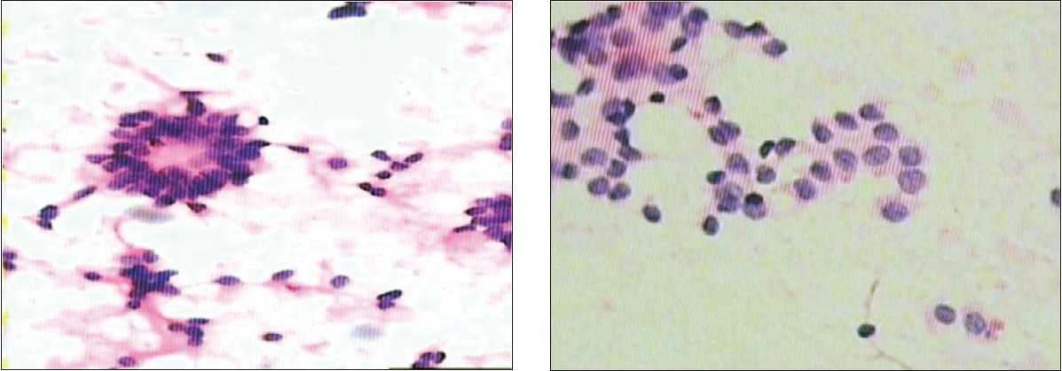 Figure 1 :(A) Asciti c fl uid showing Call Exner bodies in adult granulosa cell tumor (Giemsa, X 100)