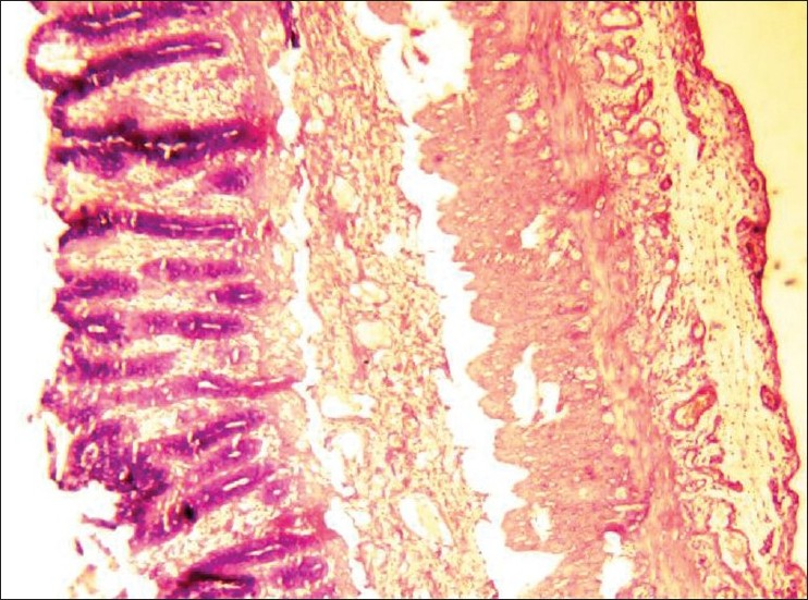 Figure 2 :Photomicrograph showing well developed gut wall (H and E; x100)