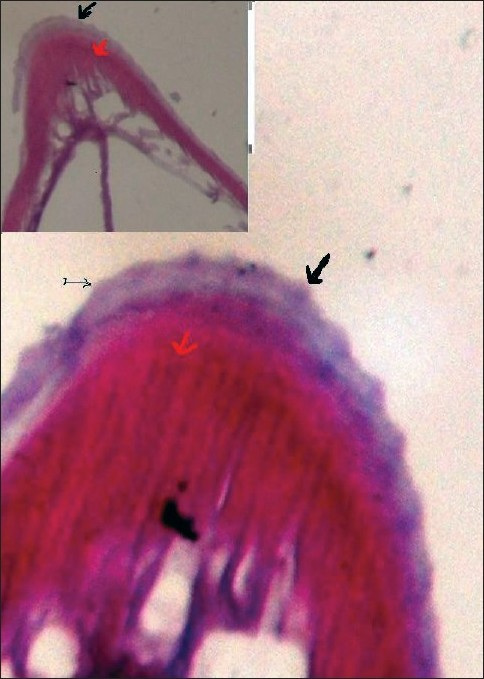 Figure 4 :Cross-secti on of Worm Showing Cuti cular Ridges (black arrow) and Muscle Layer (red arrow)(H and E, X40). (Inset X10)