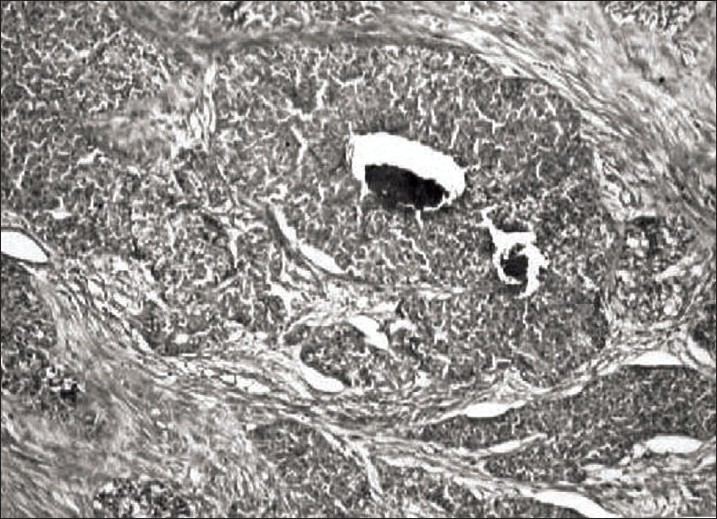 Figure 1 :Photomicrograph of adenosquamous variant of bartholin gland carcinoma showing nests of tumor cells undergoing central comedo-necrosis (H and E; x 100)