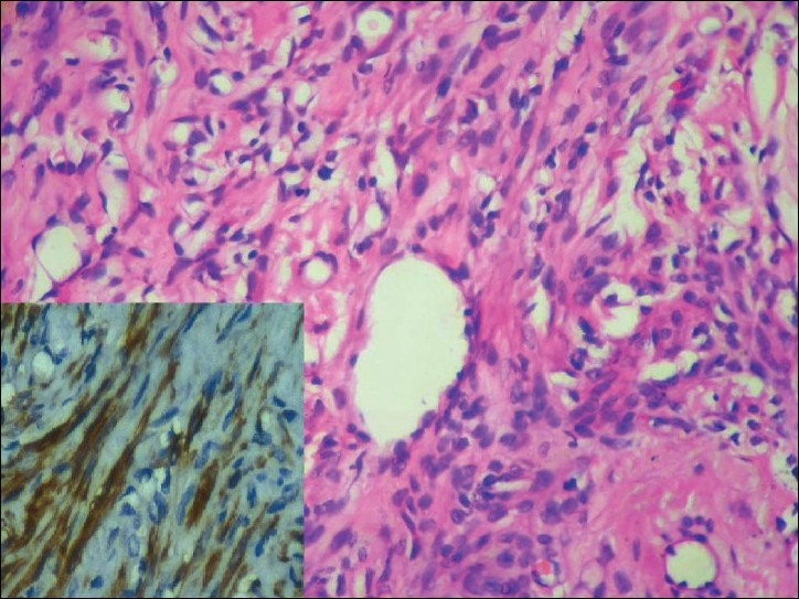 Figure 4 :Perinodular hydropic degenerati on nodule resembling a vascular lesion. Strong positi vity for h-caldesmon on IHC (inset). (H and E, x 400)