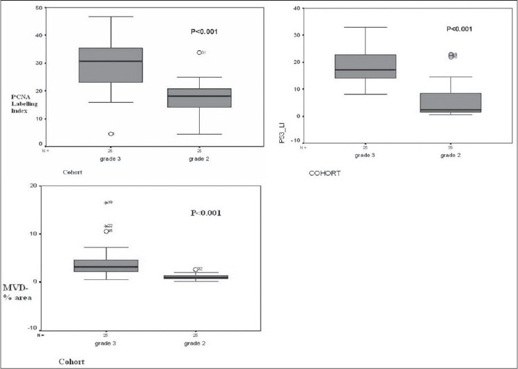 Figure 1 :Comparison of labeling indices: PCNA LI, p53 LI and micro vessel area between diff erent grades of astrocytoma
