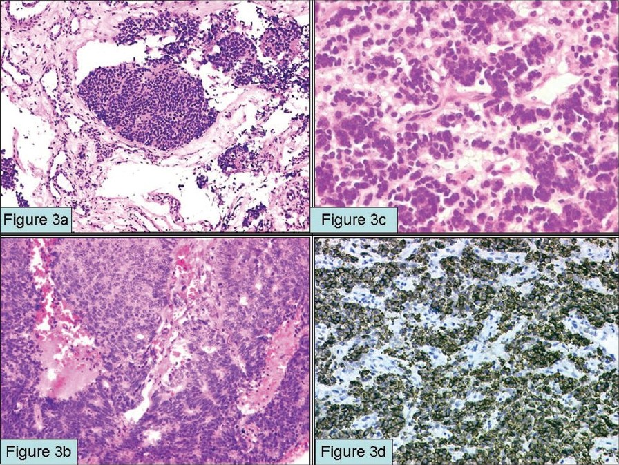 Figure 3 :Esthesioneuroblastoma: Tumor cells are arranged in lobules separated by vascular and desmoplastic stroma [fi g 3a] (H and E; x4). Tumor cells show rossett e formati on and may have comedonecrosis patt ern [fi g 3b] (H and E; x100). Higher grade tumors of Hyams III and IV grade with cord and trabecular patt ern comprised of blue undiff erenti ated cells in a fi brillary background [fi g 3c] (H and E; x200). Tumor cells show immunoreacti vity for synaptophysin