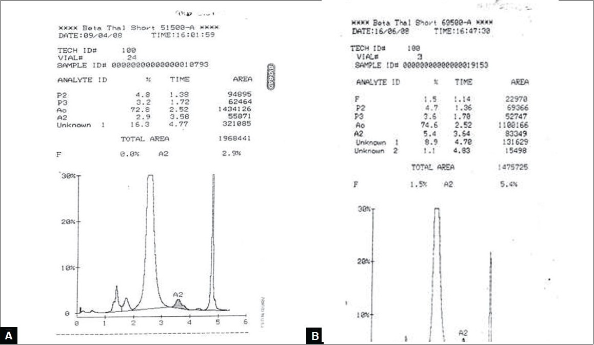 Figure 3 :(A) Chromatogram of Hb Q-India, (B) Chromatogram of double heterozygous Hb Q-India-Beta Thal trait