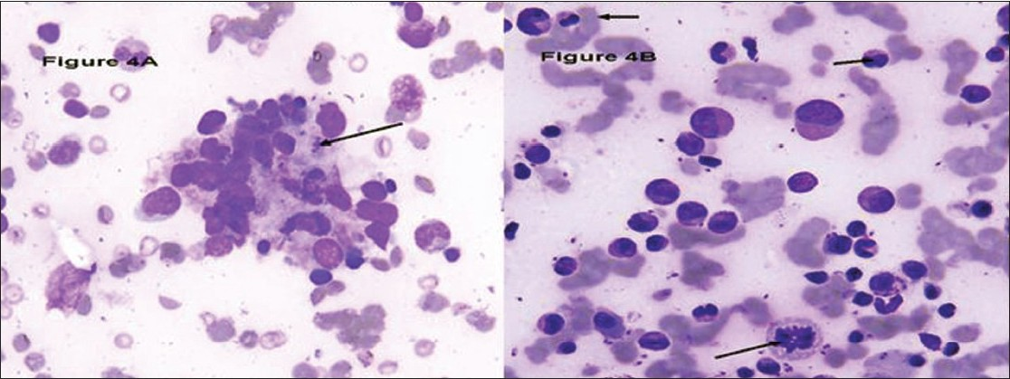 Figure 4 :(A) Marrow Histi ocytes showing hemophagocytosis as well as intracellular and extracellular LD bodies (Giemsa, X400), (B) Bone Marrow aspirate smears showing nuclear budding abnormal mitosis in erythroid precursors (Giemsa, X400)