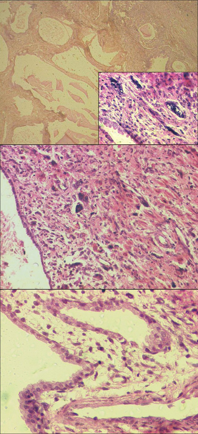 Figure 2a: Histologic secti on reveals a multi cysti c tumor. (H and E; x25). (Inset) the bland or benign epithelial lining and pleomorphic stromal cells (H and E; x400)