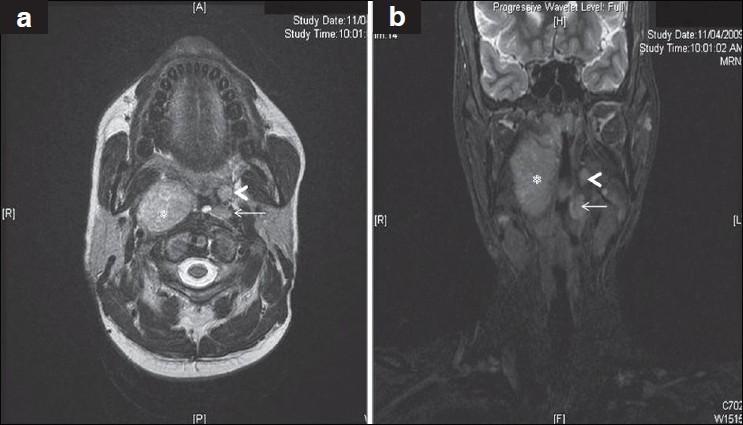 Synovial Sarcoma Natural Treatment