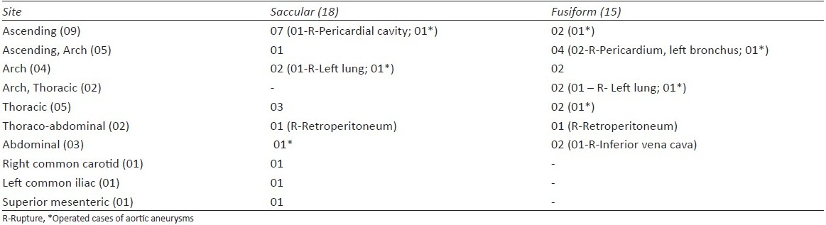 Table 3 :Syphilitic Aortitis (n=44) Sites of 33 aorto-arterial aneurysms