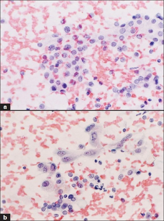 Figure 2 :Suggestive or suspicious of (S/O) PTC: Frequent nuclear grooves and fine nuclear chromatin (a, Papanicolaou; ×400) were observed during initial reporting. Acinar formation and INCI (b, Papanicolaou; ×400) were noticed during review. The histopathological diagnosis was a follicular variant of PTC (PTC-FV).