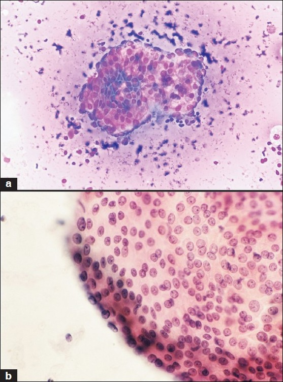 Figure 3 :S/O microscopic PTC in a colloid goiter. Smears showed papillary formation (a, MGG ×200) and a few nuclear grooves (b, Papanicolaou; ×200). Rare INCI was also described in original report. The histopathological diagnosis was multinodular goiter (MNG).