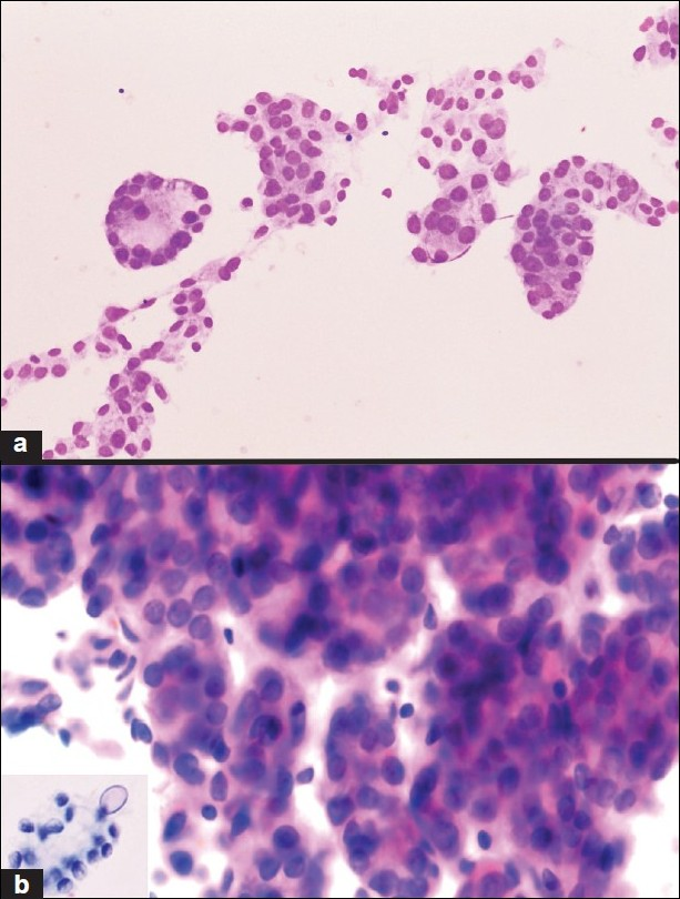Figure 4 :R/O PTC. Micro-acinar formation (a, MGG; ×200; b, Papanicolaou; ×400), fine nuclear chromatin (b), and nuclear grooves were observed during routine cyto-diagnosis. A single INCI was noticed during review (b inset, Papanicolaou; ×400). The histopathological diagnosis was PTC-FV