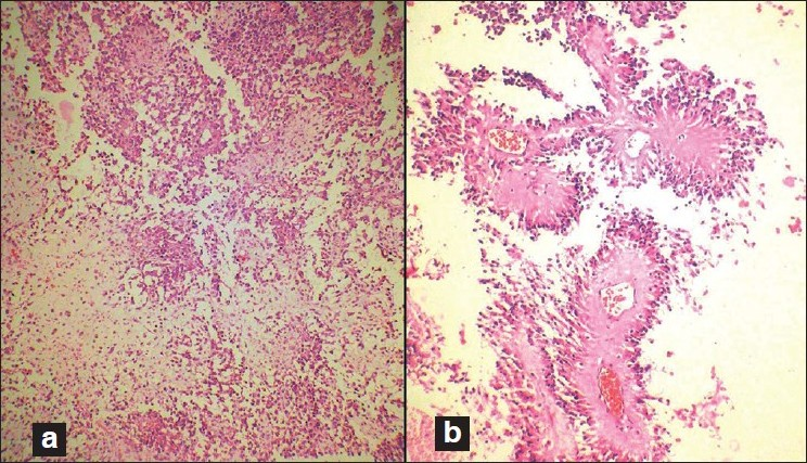 Figure 2 :(a, b) Paraffin section showing ependymoma with prominent ...