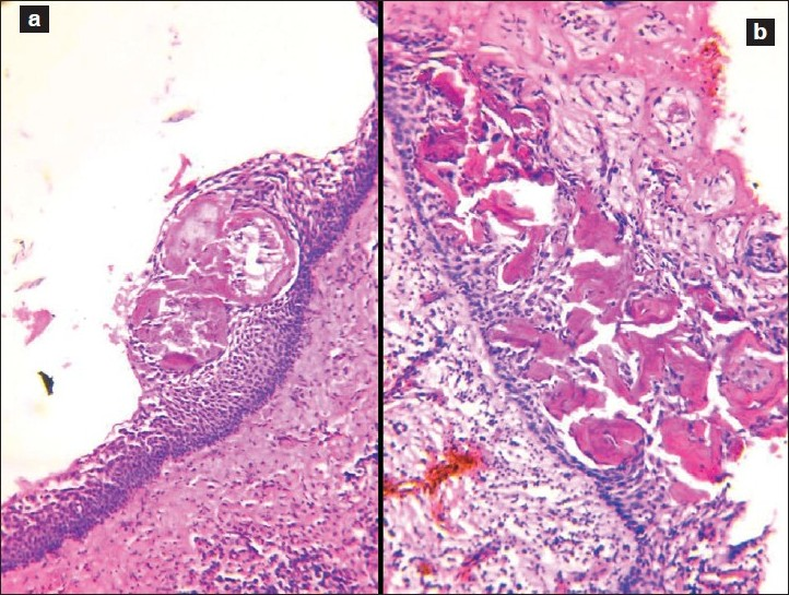 Figure 1: (a and b) RB seen as acellular, eosinophilic structures within the squamous lining of radicular cyst. (H and E, ×100)