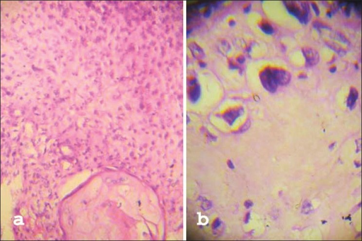 Figure 3: Photomicrograph showing sarcomatous elements (a) heterologous area with predominantly fibrosarcomatous along with chondrosarcomatous components (H and E, ×100) (b) chondrosarcomatous area (H and E, ×400)