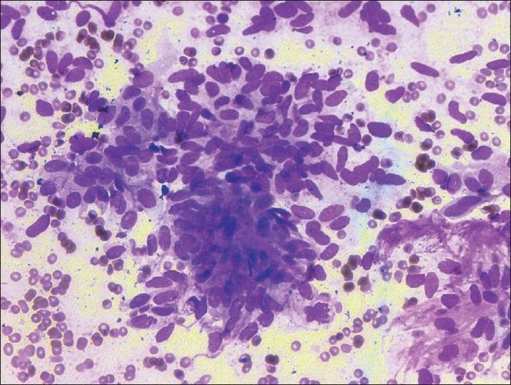 Figure 2: Cellular smear composed of spindle-to-oval shaped cells with pleomorphism and a high N:C ratio (Wright-Giemsa stain, ×400)