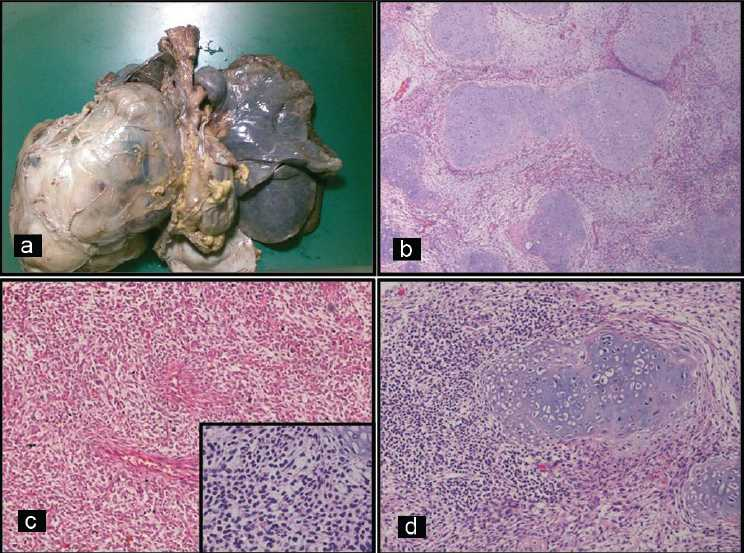 Figure 2: (a) Gross photograph of en bloc excised autopsy specimen shows a large, well-circumscribed, encapsulated, bosselated tumor on the right side. Right lung and other mediastinal structures appear compressed by the tumor. (b) Low power view of the tumor showing islands of cartilage, surrounded by sheets of undifferentiated mesenchymal cells (H and E; ×40). (c) Undifferentiated mesenchymal cells arranged in hemangiopericytomatous pattern (H and E; ×100). Inset: mesenchymal cells showing scant cytoplasm and hyperchromatic nuclei (H and E; ×400). (d) Island of cartilage surrounded by small round cells (H and E; ×200)
