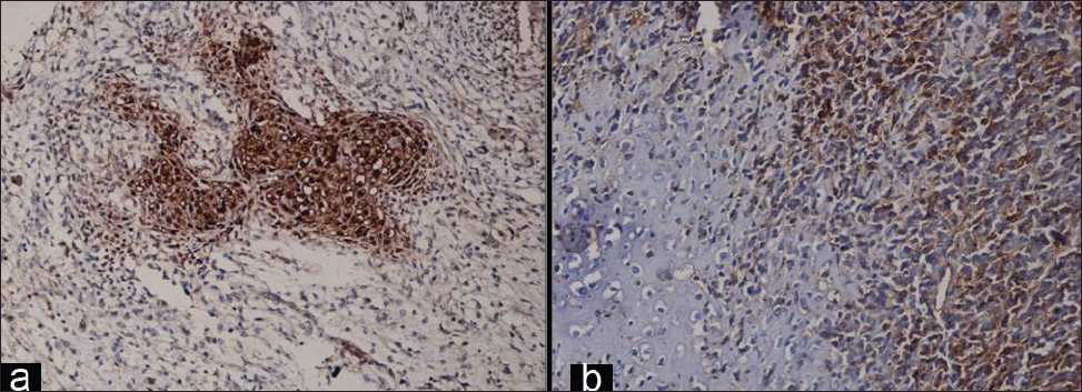 Figure 3: (a) Immunohistochemically, the cartilaginous areas display immunopositivity for S-100 protein. The mesenchymal cells appear negative (S-100; ×200). (b) The mesenchymal cells show immunopositivity for Mic-2 (CD99) which is absent in the cartilaginous areas (CD99; ×200)