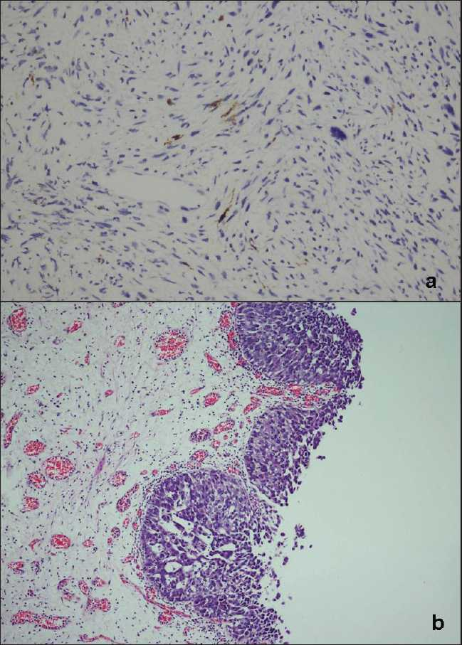 Figure 3: (a) Focal S100 immunostaining in tumoral cells (IHC, ×400); (b) urothelial carcinoma in situ, in second TUR. (H and E, ×100)