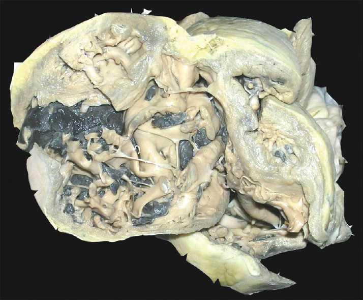 Isolated idiopathic right ventricular dilated for Cardiac mural thrombi