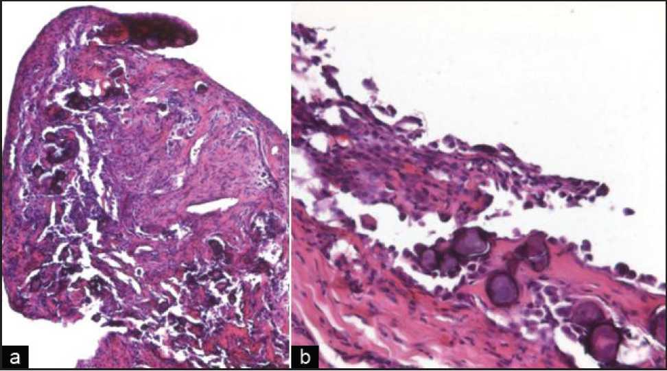 Peritoneal Malignant Psammomatous Mesothelioma Pusiol T Zorzi Mg