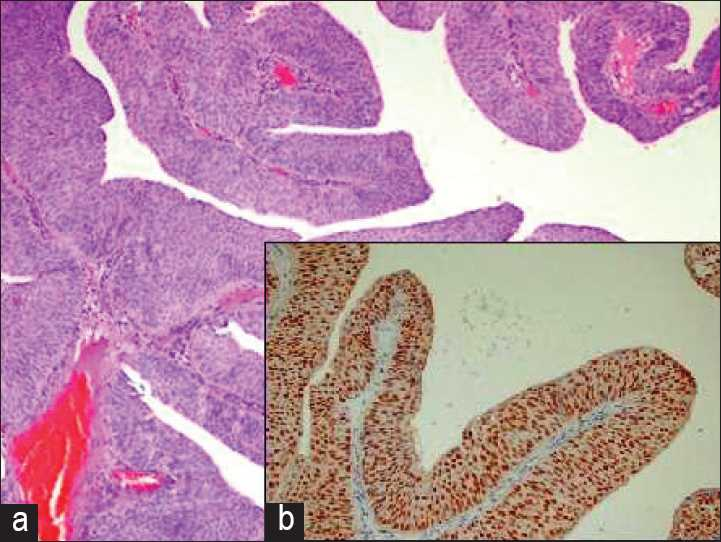 Figure 1: (a) Low grade urothelial carcinoma; (H and E, ×200). (b) (INSET) Strong p63 staining in low grade urothelial carcinoma (IHC, ×200).
